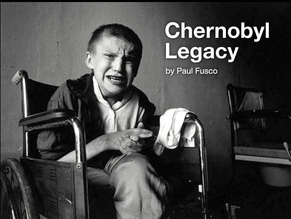 Çernobil ve diğer nükleer kazalardan etkilenen çocuklar.