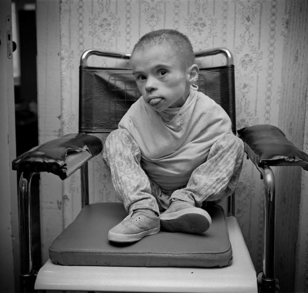 belarus-chernobyl-hospital-BY100084
