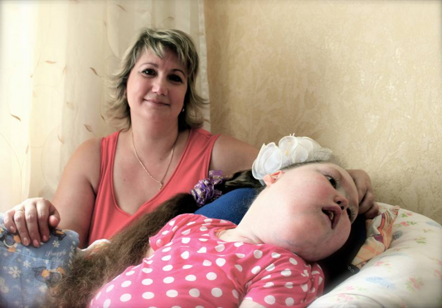 Çernobil ve diğer nükleer kazalardan etkilenen çocuklar. (Nastya ve Luda)