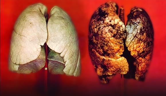 Sigara ve kanser bağlantısı Nazi döneminde bulunmuştur